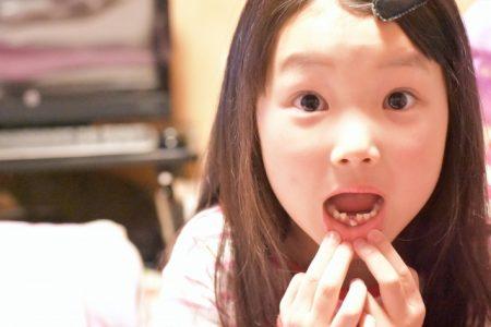 乳歯 生え変わり 遅い